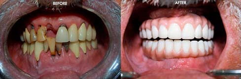 A before and after of a full mouth restoration with a Prettau Zirconia Bridge