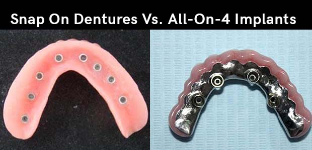Side by side comparison of a Snap On Denture and a Prettau Bridge