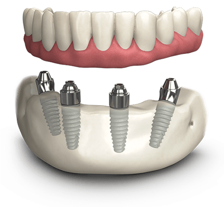 The graphic shows a model of the ALl On 4 dental implants with a hybrid implant denture.