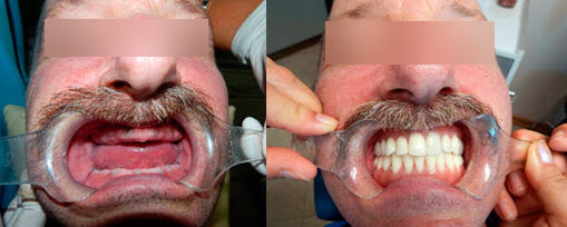 Before and after dental implants with a fixed hybrid denture