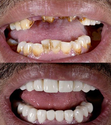 Before and after of a smile makeover with an implants bridge, Veneers and E-max crowns in the Cancun Mexico dental clinic.