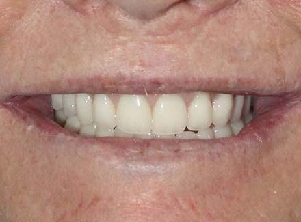 A Prettau bridge on a patient that had a full mouth reconstruction.