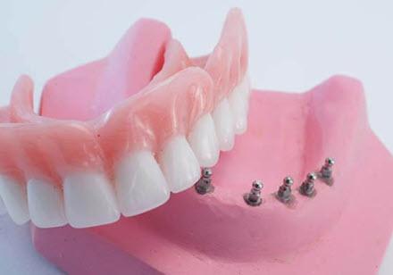 Clip-On Dentures