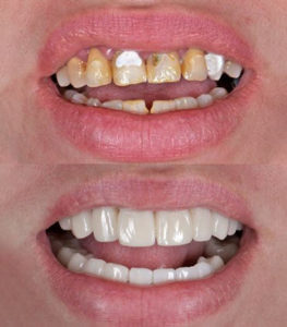 Before and after of porcelain veneers and E-max crowns