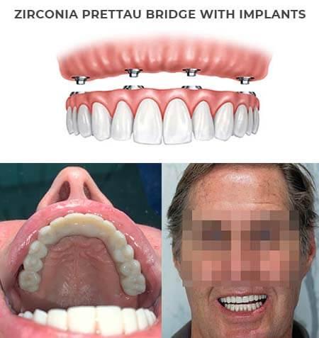 Dental Veneers of Celeb Jaws Health