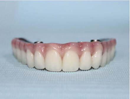 Zirconia denture