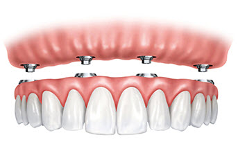 Upper implant fixed dentures