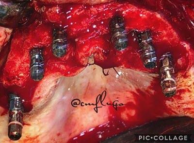 Full mouth dental implants on upper maxilla