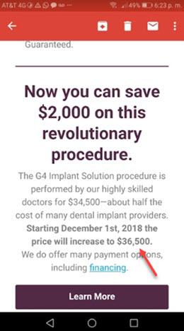 Golpa dental implants cost