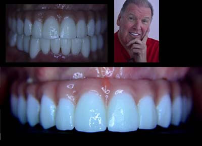 Image of an upper overdenture over implants.