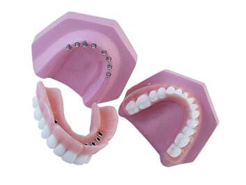 A set of mini dental implants set on a model with Snap on dentures