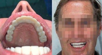 A palateless fixed denture for the upper maxilla.