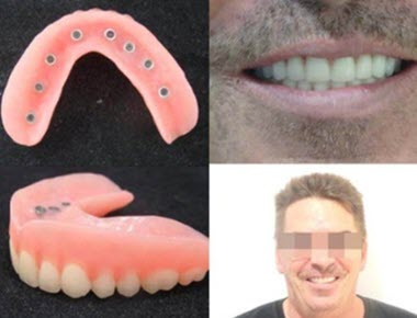 Picture that shows a set of Snap On Dentures from the inside area (showing the o-rings) and on the patient.