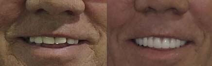 Before and after of porcelain dentures with implants.