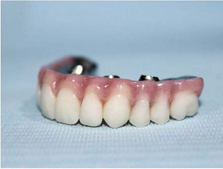 A set of Zirconia dentures made at our laboratory.