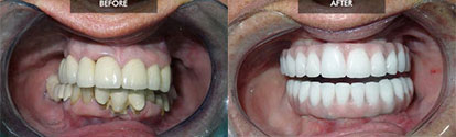 Before and after of Screw in Dentures