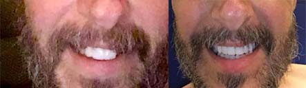 smile-makeover-before-and-after