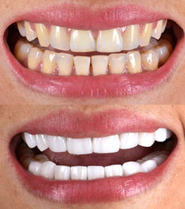 Before and after of cosmetic dentistry with porcelain veneers