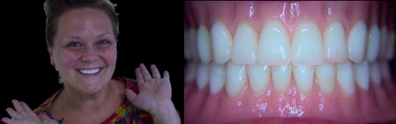 Snap On Dentures with implants
