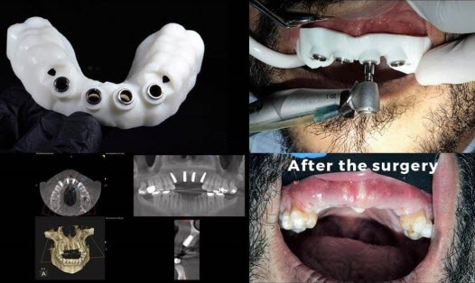 Surgical guides for dental implant placement