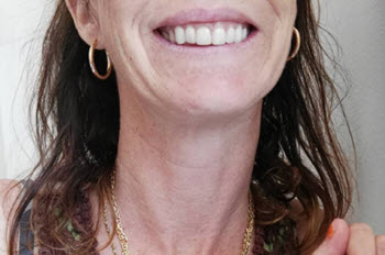 This is a set of temporary teeth after the All-On-4 surgery