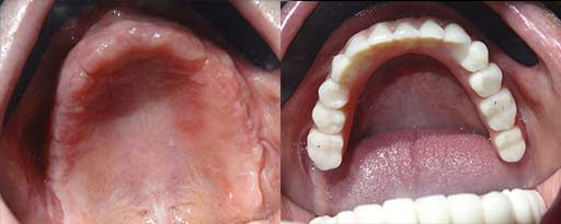 Upper denture with implants before and after