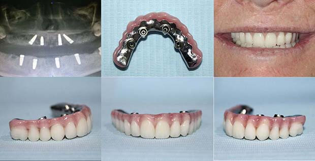 Zirconia bridge over All On 4 implants