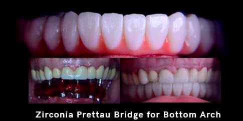 Picture with a bottom set of Zirconia bridge.